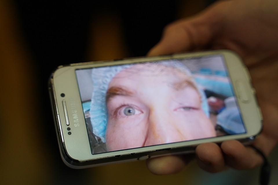 Самарские врачи за полчаса «открыли» глаз итальянцу