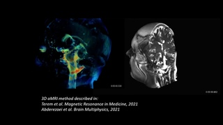 3D aMRI CSF and whole brain