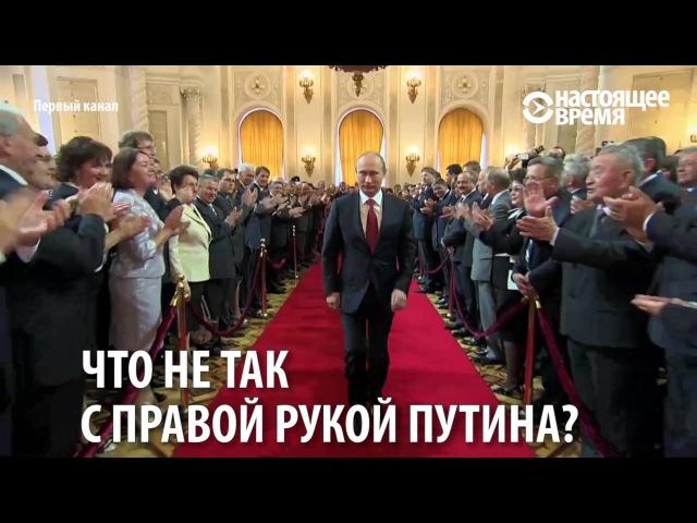 У Путина диагностировали походку стрелка Посмотрите на его правую руку
