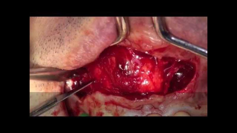 Dental Cyst Surgery (Enucleation of Radicular Cyst) dr.Stefano Piras (Rimini)