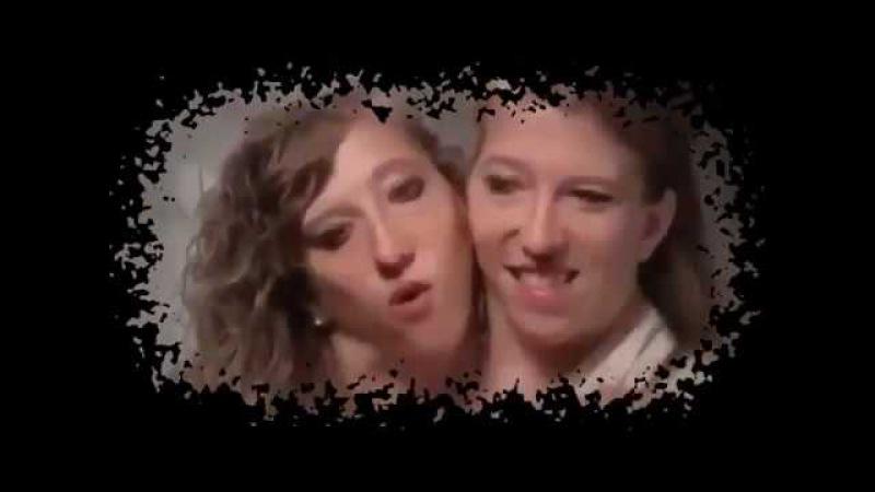 сиамские близнецы Эбигейл и Бриттани Хенсел