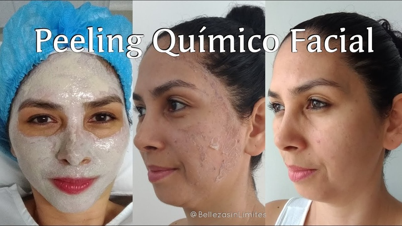 Peeling Quimico Facial | Renueva tu Piel