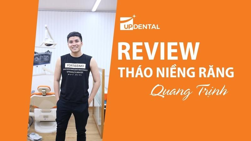 [Review tháo niềng răng]: 5 - Kết quả niềng răng khấp khểnh của Quang Trịnh
