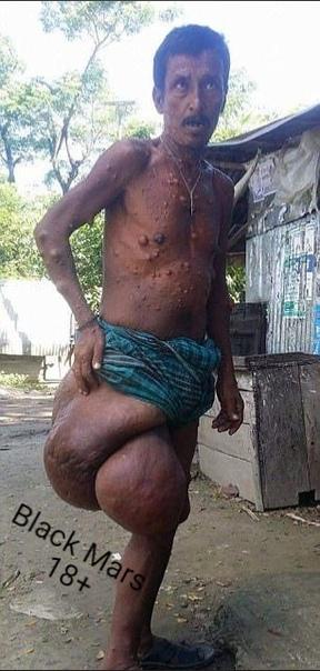 Тело 53-летнего Харуна Патвари из Бангладеш покрыто множеством опухолей, самая большая из которых выросла на правом бедре мужчины - ее вес составляет 38 кг