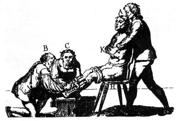 Коленодробилка Коленодробилка использовалась для раздробления и ломания суставов, как коленных, так и локтевых. Кроме того, многочисленные стальные зубья, проникая внутрь тела, наносили