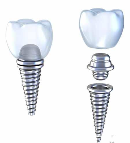 Понимание и подготовка к процедуре имплантации зубов.