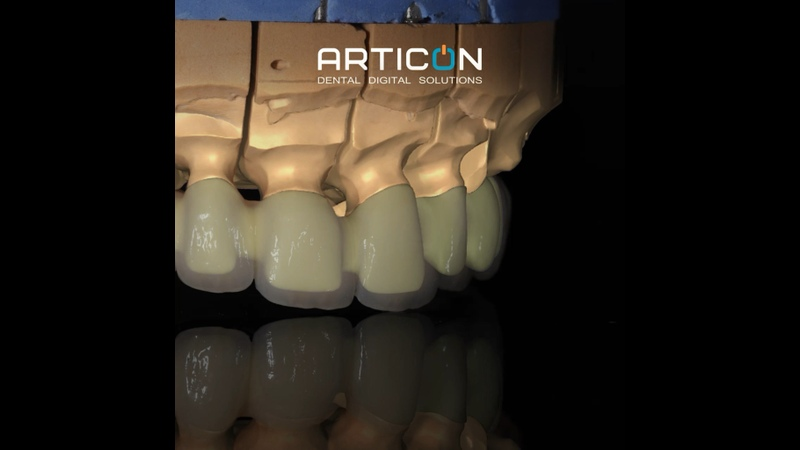 Видео от Articon