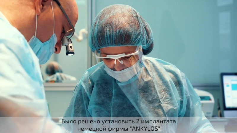 Установка двух имплантатов Ankylos с регенерацией кости зуба